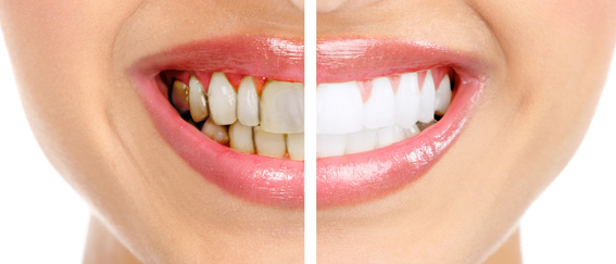 Teeth Whitening in Orange County
