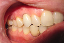 After Treatment Implant in Mouth