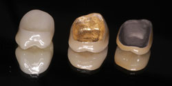 Crowns for Tooth